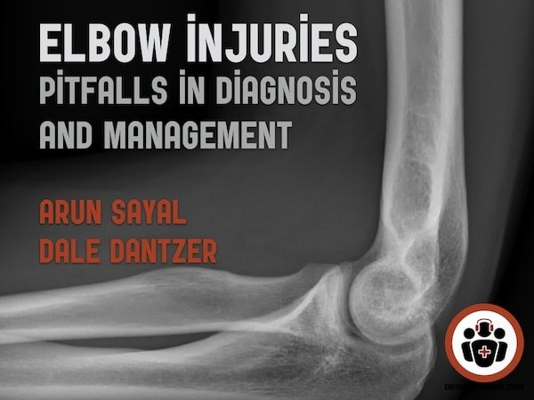 Ep 121 Elbow Injuries – Ten Pitfalls in Diagnosis and Management