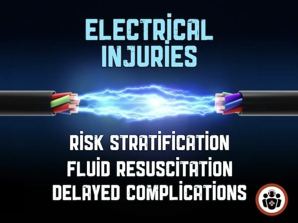 Ep 125 Electrical Injuries – The Tip of the Iceberg