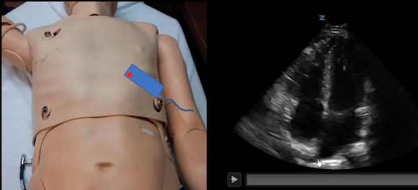 POCUS Cases 8 – LV Dysfunction