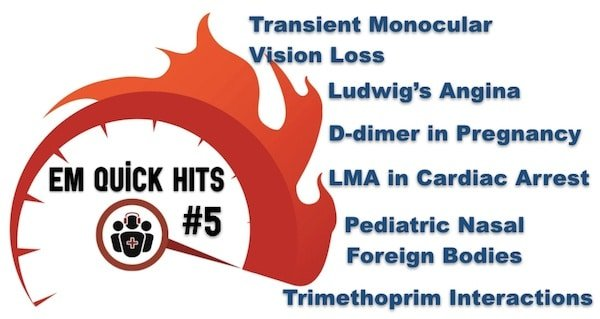 EM Quick Hits 5 Ludwig's Angina, Transient Monocular Vision Loss, D-dimer for PE Workup in Pregnancy, Pediatric Nasal Foreign Bodies, Trimethoprim Drug Interactions, Airway Management in Cardiac Arrest
