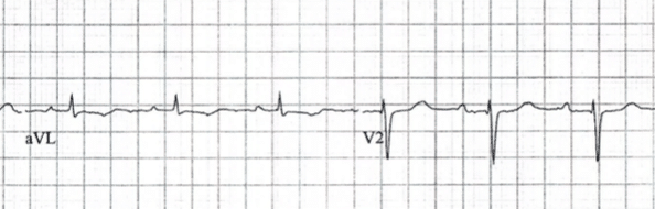 Isolated T-wave inversion or ST depression in aVL may be a sign of impending inferior STEMI
