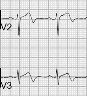 Wellen's Type A. Note biphasic T waves.