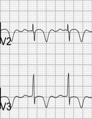 Wellen's Type B. Note deep inverted T-waves.