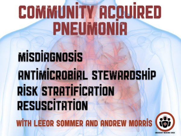 Ep 130 Community Acquired Pneumonia: Emergency Management