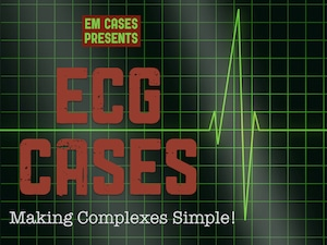 ECG Cases - Making Complexes Simple