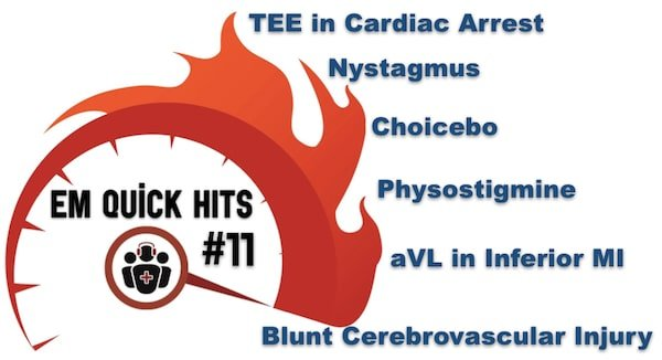 EM Quick Hits 11 Blunt Cerebrovascular Injury, Physostigmine, TEE in Cardiac Arrest, Understanding Nystagmus, Subtle Inferior MI, Choicebo
