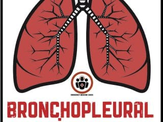 Bronchopleural Fistula