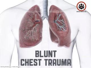 blunt chest trauma