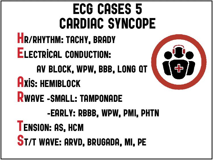 ECG Cases 5: Cardiac Syncope