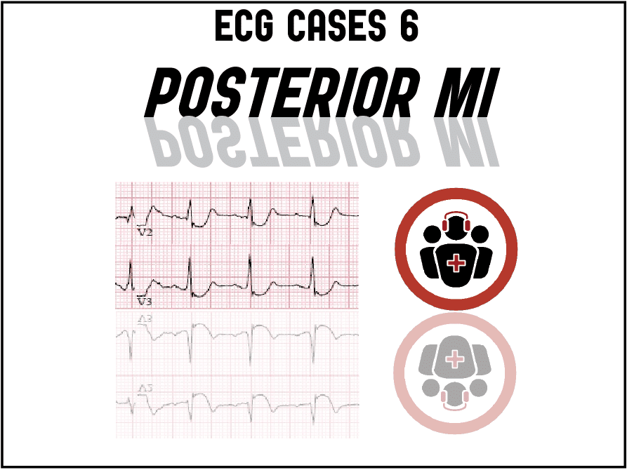 ECG cases 6: Posterior MI – Still Under-recognized