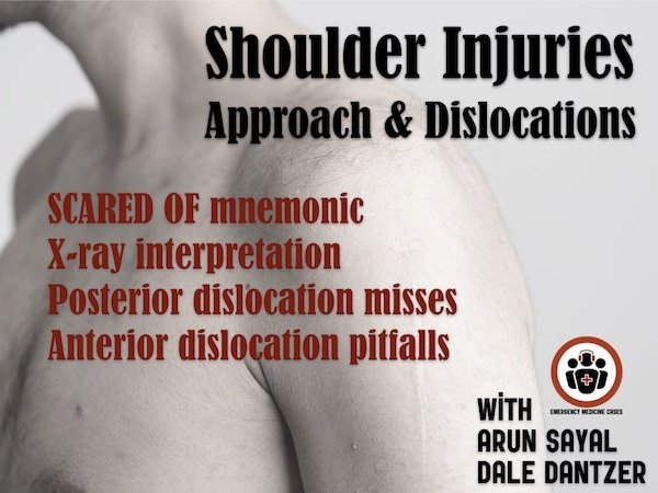 Ep 135 Commonly Missed or Mismanaged Shoulder Injuries – Approach and Glenohumeral Dislocations
