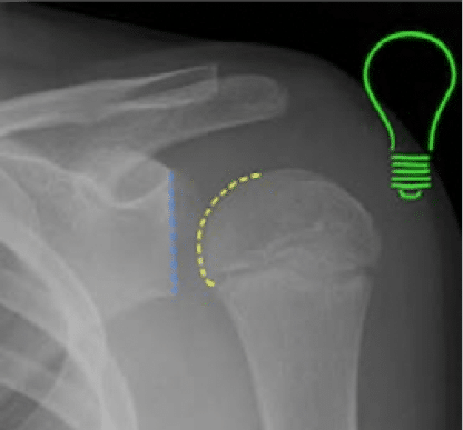 light bulb sign posterior dislocation