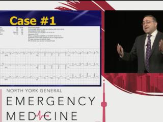 Killer ECGs Pericardial Effusions EMU365 video