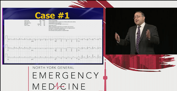 Killer ECGs Pericardial Effusions EMU365 video