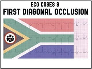 ECG Cases 9 First Diagonal Occlusion