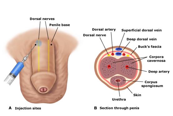 Dorsal nerve block penis