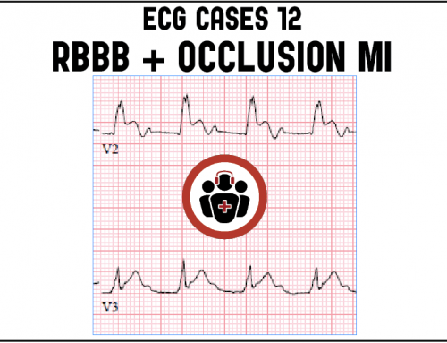 ECG Cases 12: RBBB and Occlusion MI