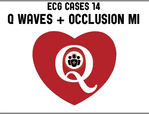 ECG Cases 14: Q-wave and Occlusion MI