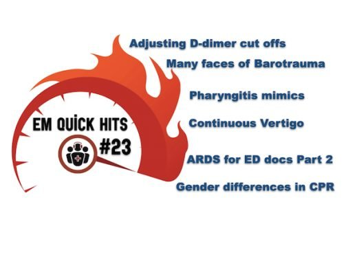 EM Quick Hits 23 – Clinical Probability Adjusted D-dimer, ARDS Part 2, Pharyngitis Mimics, Barotrauma, Vertigo, CPR Gender-Based Differences