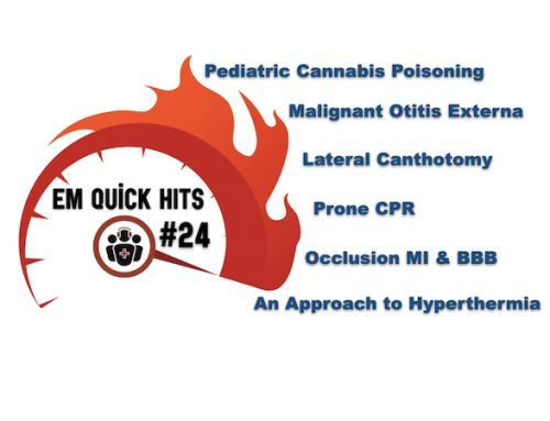 EM Quick Hits 24 Lateral Canthotomy, Cannabis Poisoning, Hyperthermia, Malignant Otitis Externa, BBB in Occlusion MI, Prone CPR