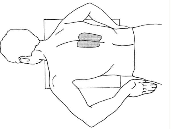 Suggested location for hand position for chest compressions in the prone patient 0-2 vetebrae below the scapula