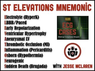 ST ELEVATIONS mnemonic