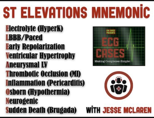 ECG Cases 17 – ST ELEVATIONS mnemonic and Occlusion MI