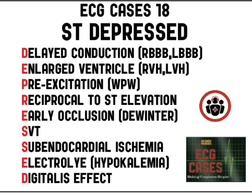 ECG Cases 18 – ST DEPRESSED Mnemonic and Occlusion MI