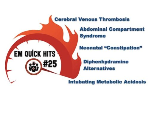 EM Quick Hits 25 Cerebral Venous Thrombosis, Diphenhydramine Alternatives, Abdominal Compartment Syndrome, Neonatal Constipation, Intubating Metabolic Acidosis