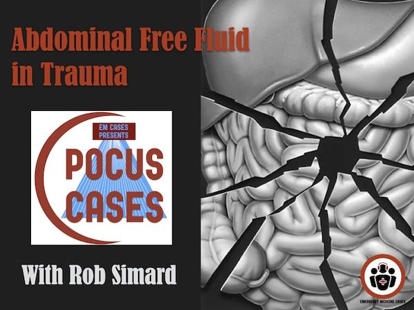 POCUS Cases Abdominal Free Fluid in Trauma