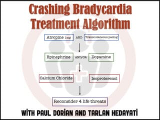 Bradycardia Treatment