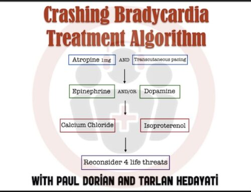 Ep 155 Treatment of Bradycardia and Bradydysrhythmias