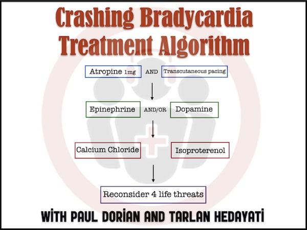 Bradycardia Treatment