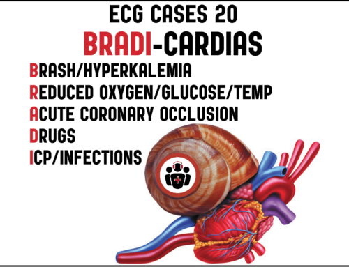 ECG Cases 20 – Approach to Bradycardia and the BRADI Mnemonic