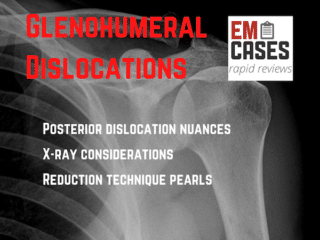 Glenohumeral Dislocations
