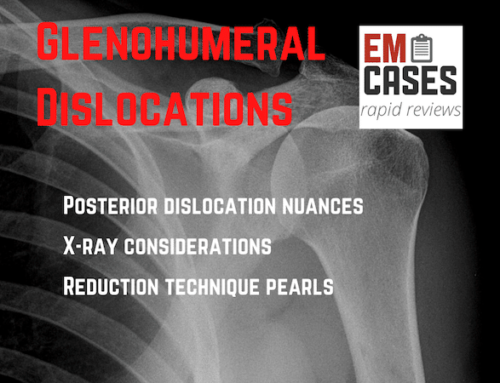 Glenohumeral Dislocation Rapid Review Video