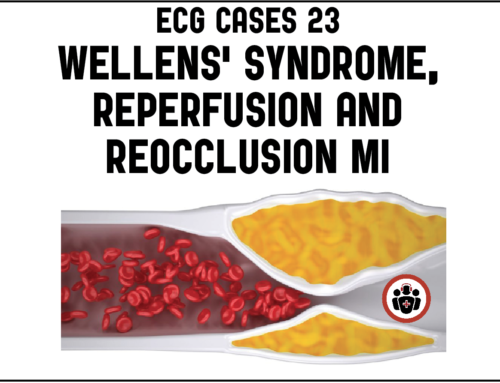 ECG Cases 23 – Wellens syndrome, reperfusion and reocclusion MI