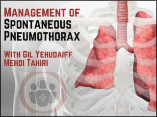 Management of Spontaneous Pneumothorax