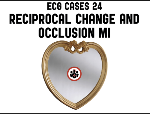 ECG Cases 24 Reciprocal Change and Occlusion MI