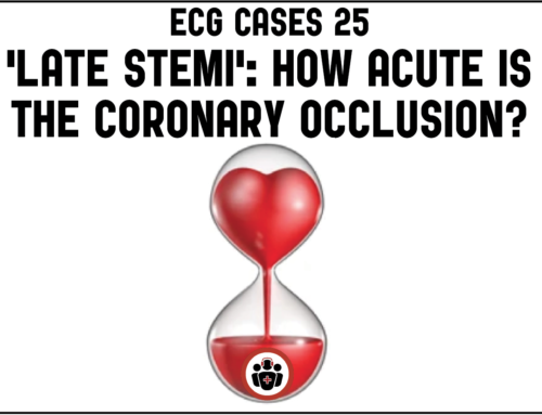 ECG Cases 25: 'Late STEMI' – How acute is the coronary occlusion?