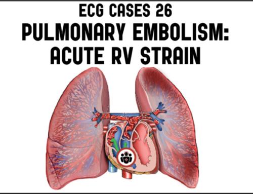 ECG Cases 26: Pulmonary Embolism and Acute RV Strain